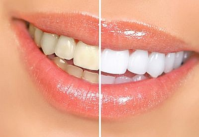 Как снять налет с зубов?