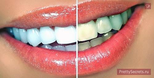 Красивые и здоровые зубы и десна