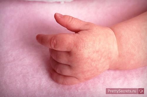 Малышкины неприятности: крапивница – как выглядит и как лечить?