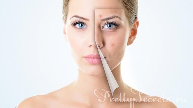 Почему со временем кожа увядает и теряет эластичность